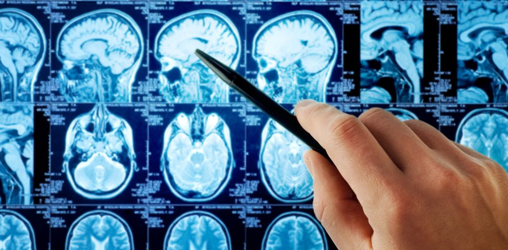 beynin-ozellikleri
