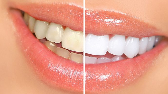 dis-beyazlatma-bleaching-1 Diş Beyazlatma (Bleaching)