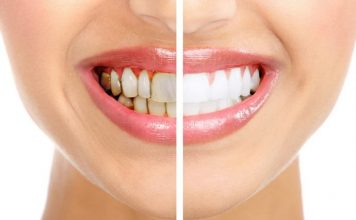 diş beyazlatma bleaching