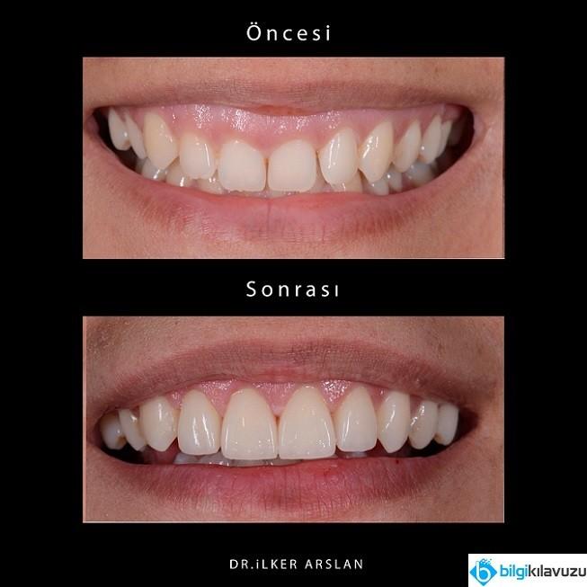 pembe-estetik-ile-ozguvenli-gulumsemeler-2 Pembe Estetik ile Özgüvenli Gülümsemeler