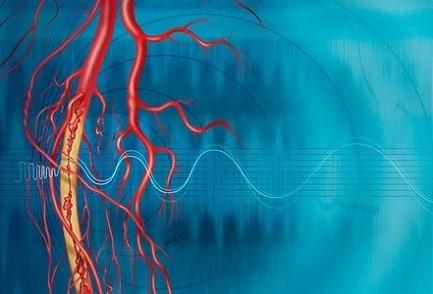 periferik-arter-hastaligi-atardamar-hastaligi PERİFERİK ARTER HASTALIĞI (ATARDAMAR HASTALIĞI)