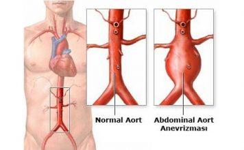 aort anevrizması