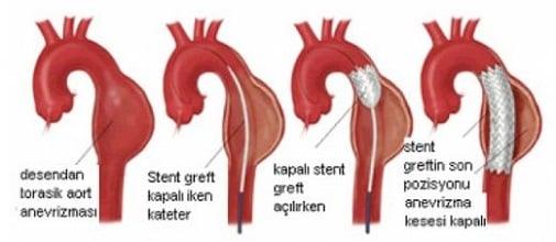 aort-anevrizmasi-nedir-tedavi-yontemleri-nelerdir-2 Aort Anevrizması Nedir? Tedavi Yöntemleri Nelerdir?