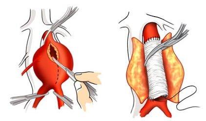 aort-anevrizmasi-nedir-tedavi-yontemleri-nelerdir-3 Aort Anevrizması Nedir? Tedavi Yöntemleri Nelerdir?