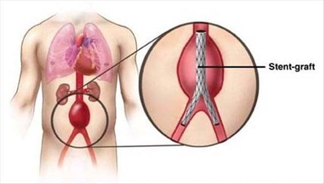 aort-anevrizmasi-nedir-tedavi-yontemleri-nelerdir Aort Anevrizması Nedir? Tedavi Yöntemleri Nelerdir?