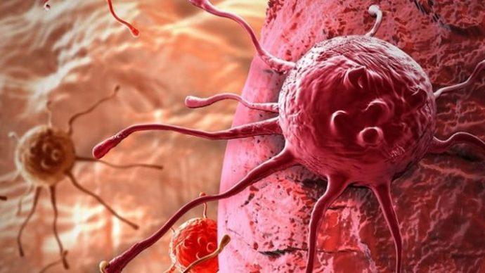 obezitenin-gastrointestinal-kanser-turleri-uzerine-etkisi-2 Obezitenin Gastrointestinal Kanser Türleri Üzerine Etkisi