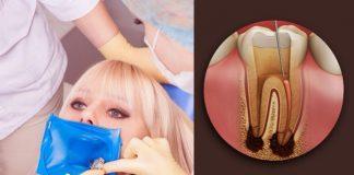kanal tedavisi ile diş çekimi önlemi