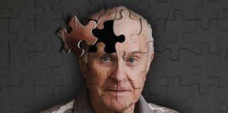 Alzheimer Hastalığı Nedir? Belirtileri Nelerdir? Tedavi Var mıdır?