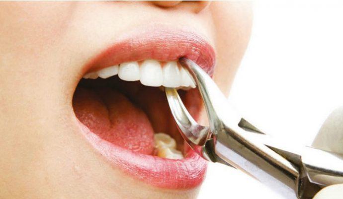 Diş Çekiminde Hastalığınızın Rolü Büyük!
