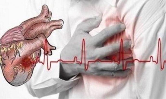 Kalp Krizi Nedir Ve Belirtileri Nelerdir?
