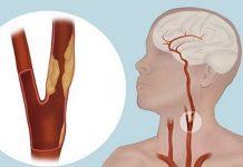 Karotis Arter (Şahdamar)Hastalığın Belirtileri Ve Nasıl Tedavi Edilir?