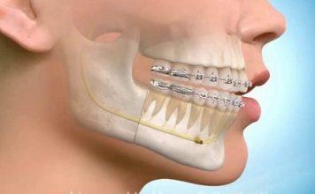 ortodonti
