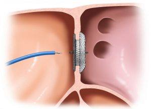 Diagnosis-of-Atrial-Septal-Defect-1024x745-300x218 ATRİYAL SEPTAL DEFEKT (Kalp Kulakçıklar Arasında Delik)