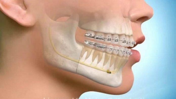 Ortodonti Tedavi Sürecinde Ağız Hijyeniniz Açısından Önemi Nedir?